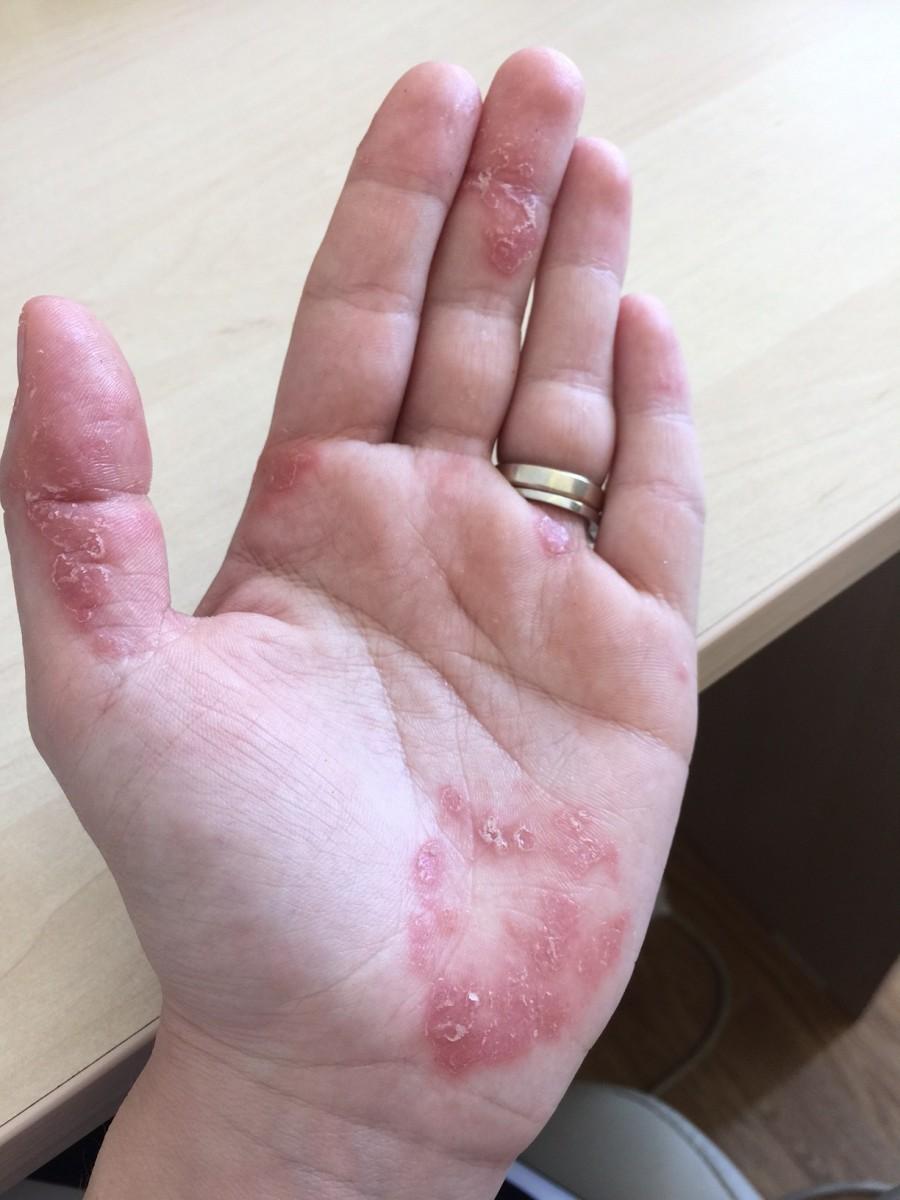 dermatita atopica tratament homeopat pentru candida